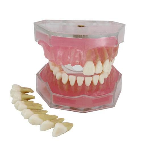 dental implant teeth model